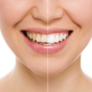 tooth whitening results