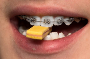 Chewing Gum With Braces