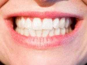 Full Set of Teeth Smile - Superior Smiles